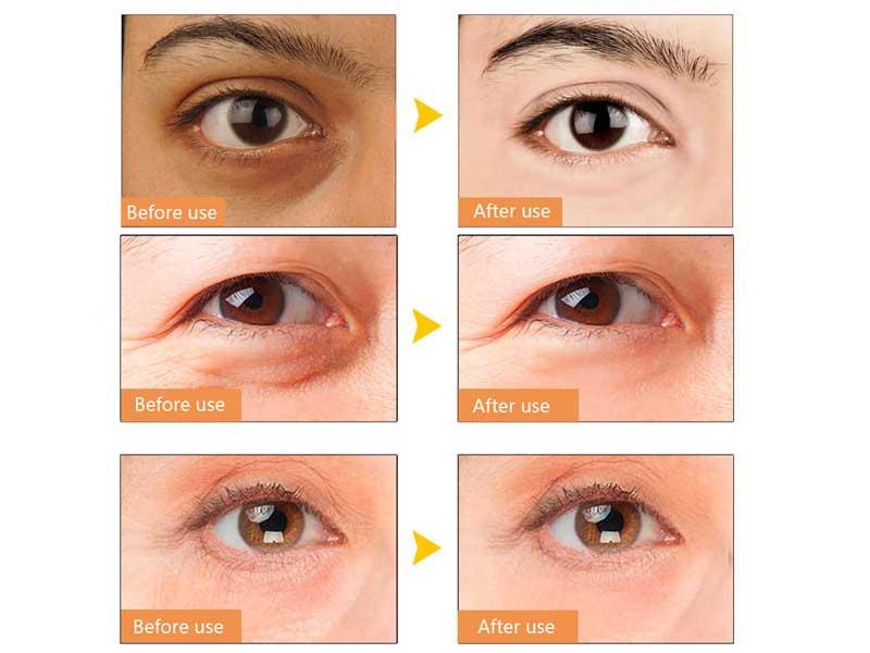 تفاوت استفاده از کرم دور چشم