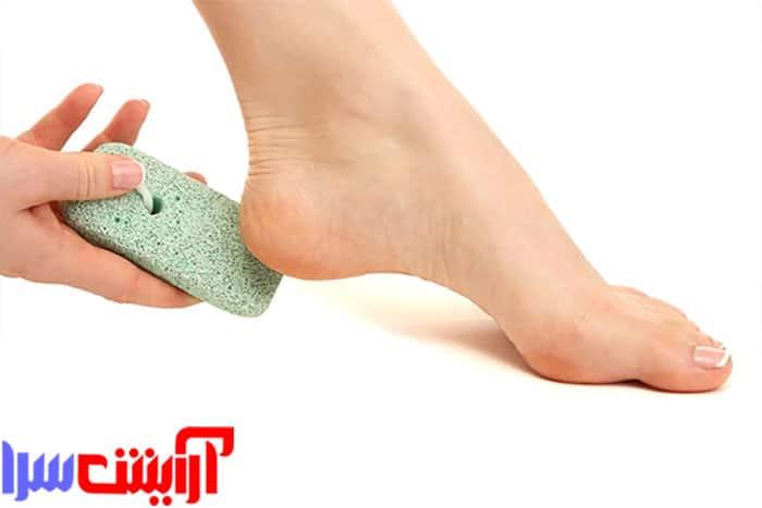 روش درمان ترک پا   روش گیاهی درمان ترک پا   علائم ترک پا   در این مقاله تلاش میکنیم تا با روش های بسیار ساده و آسان درمان ترک پا را به شما آموزش دهیم