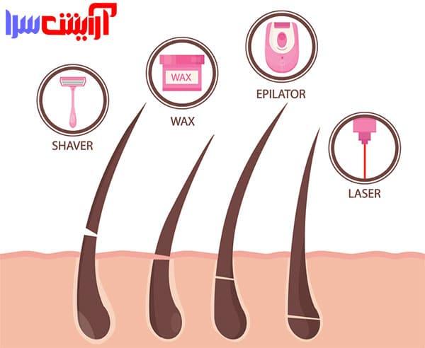 لیزر موهای زائد | مزایای لیزر موهای زائد | لیزر موهای صورت | عوارض لیزر برای پوست | لیزر چیست | مزایا و معایب لیزر موهای زائد را در این مقاله مطالعه کنید |